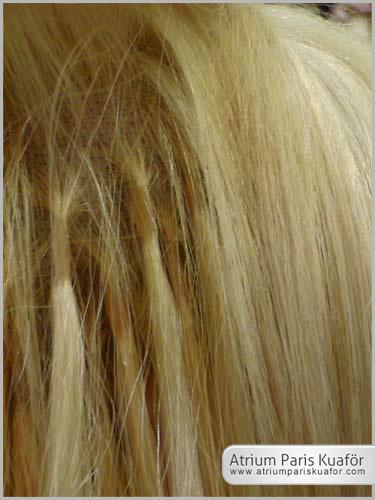 saç dökülmelerine çözüm