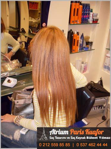 Saç Kaynak Örnekleri
