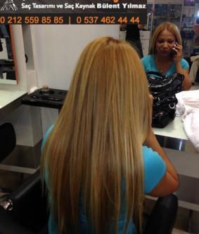 Belli Olmayan Boncuk Saç Kaynak Öncesi – Sonrası