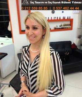 Halka Saç Kaynak Öncesi Sonrası Resimleri